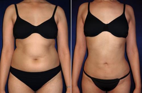 убрать жир хирургическим путем